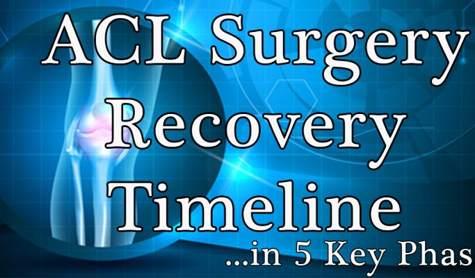 5 Key ACL Recovery Timeline Stages for Sports Athletes!