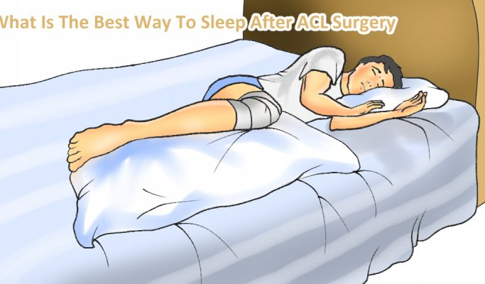 The Best Ways To Sleep After ACL Surgery?