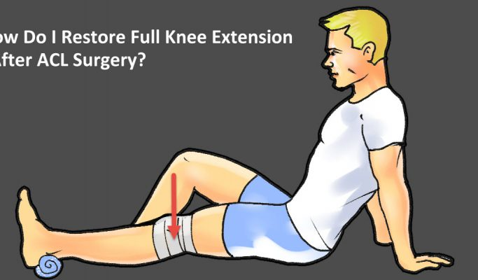 Full Knee Extension After ACL Surgery – 3 Exercises To Help You Straighten Your Knee