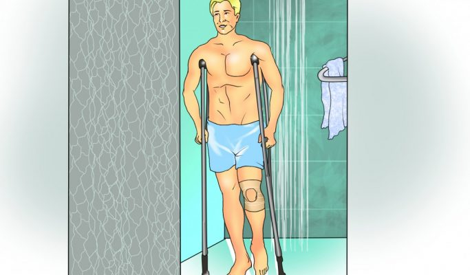 When and How Can I Shower After ACL Surgery?